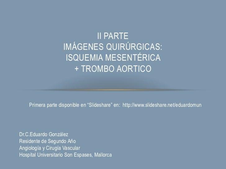 II PARTE                    IMÁGENES QUIRÚRGICAS:                     ISQUEMIA MESENTÉRICA                       + TROMBO ...