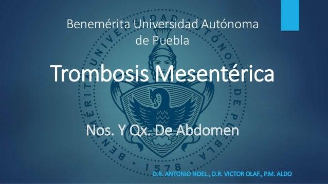 Nos. Y Qx. De Abdomen D.R. ANTONIO NOEL., D.R. VICTOR OLAF., P.M. ALDO Trombosis Mesentérica Benemérita Universidad Autóno...