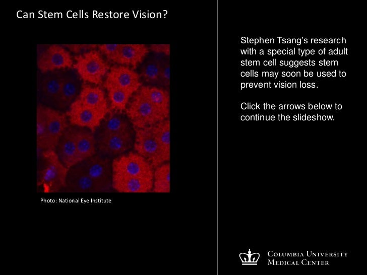 Can Stem Cells Restore Sight?