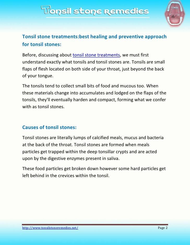 Tonsil Stones Can Cause Rheumatic Heart Disease