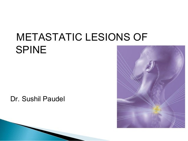 METASTATIC LESIONS OF SPINE Dr. Sushil Paudel