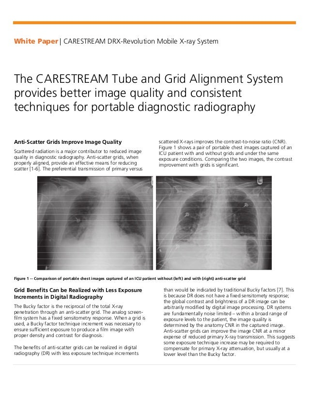 White Paper | CARESTREAM DRX-Revolution Mobile X-ray System The CARESTREAM Tube and Grid Alignment System provides better ...