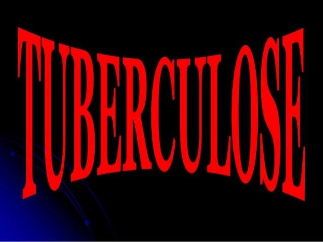 Tuberculose   seminário