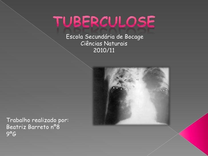 Tuberculose<br />Escola Secundária de Bocage<br />Ciências Naturais<br />2010/11<br />Trabalho realizado por:<br />Beatriz...