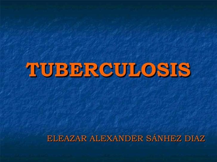 TUBERCULOSIS ELEAZAR ALEXANDER SÁNHEZ DIAZ