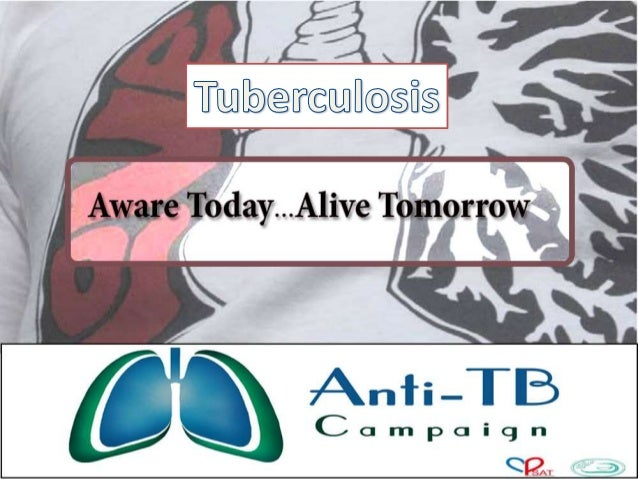 Tuberculosis               •               •               •