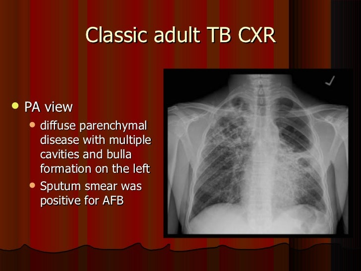 Ask the expert Chest xray frequency with positive TB