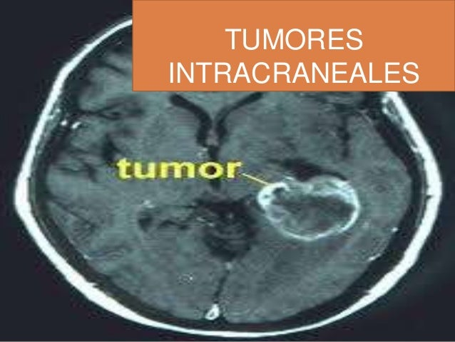 Tumores Intracraneales