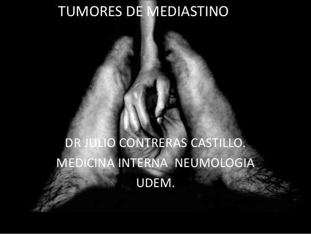 DR JULIO CONTRERAS CASTILLO. MEDICINA INTERNA NEUMOLOGIA UDEM. TUMORES DE MEDIASTINO
