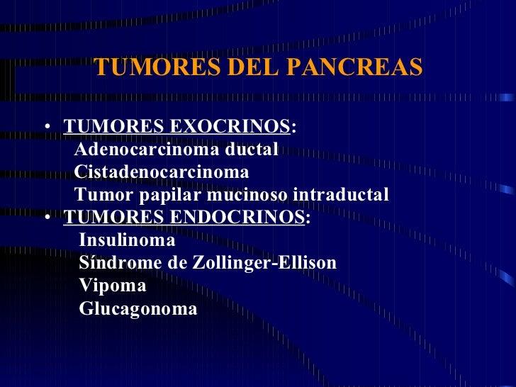 TUMORES DEL PANCREAS <ul><li>TUMORES EXOCRINOS : </li></ul><ul><li>Adenocarcinoma ductal </li></ul><ul><li>Cistadenocarcin...