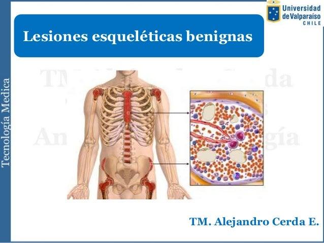 Lesiones esqueléticas benignas                     TM. Alejandro Cerda E.