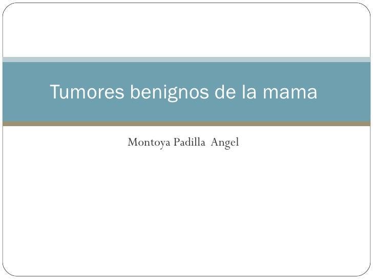 Tumores Benignos De La Mama Angel