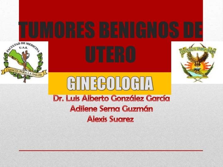 Tumores benignos de utero... by adilene & alexis