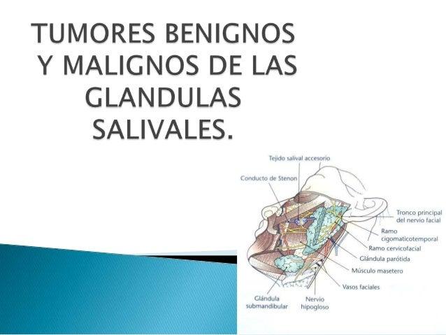 BENIGNOS MALIGNOS ADENOMA PLEOMORFO CARCINOMA. MUCOEPIDERMOIDE ADENOMA CANALICULAR: CARCINOMA EPIDERMOIDE ONCOCITOMA CARCI...