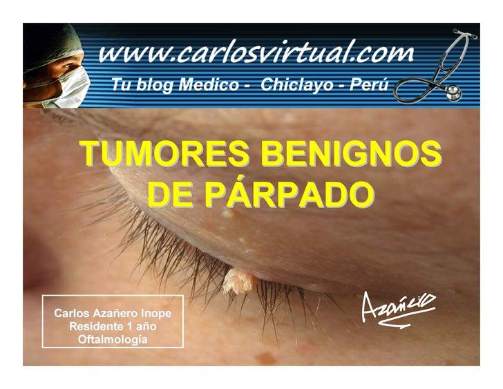 TUMORES BENIGNOS        DE PÁRPADO   Carlos Azañero Inope   Residente 1 año     Oftalmología       Carlos Augusto Azañero ...