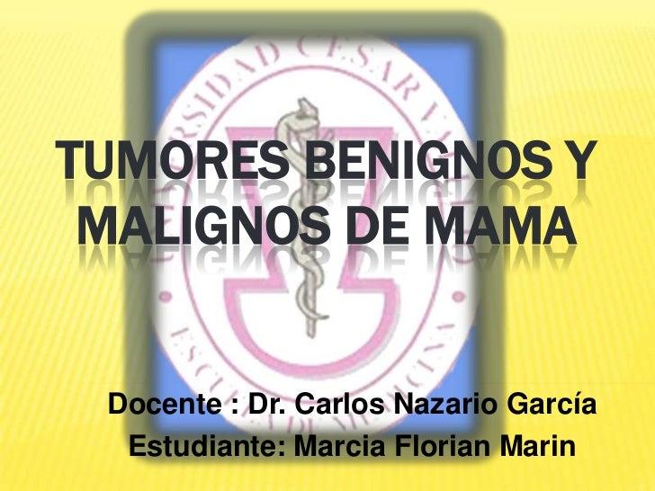 TUMORES BENIGNOS y malignos DE MAMA<br />Docente : Dr. Carlos Nazario García<br />Estudiante: Marcia FlorianMarin<br />