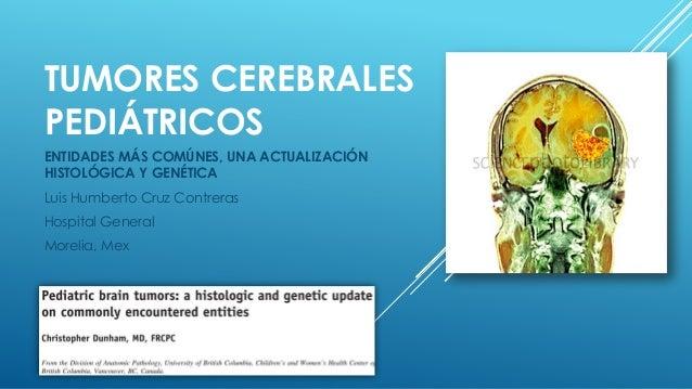 Tumores cerebrales pediátricos (Neoplasias más comunes, repaso de características morfológicas, y algunos detalles de genética)