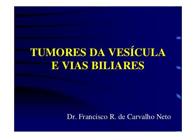 TUMORES DA VESÍCULA E VIAS BILIARES Dr. Francisco R. de Carvalho Neto