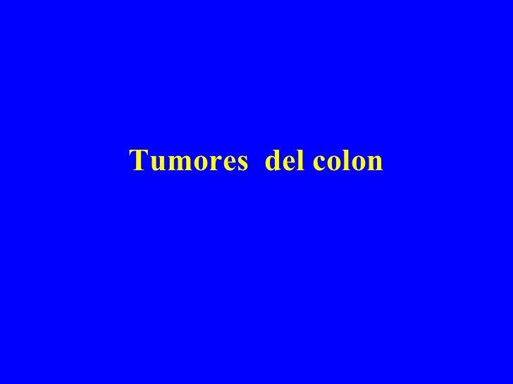 Tumores Del Colon