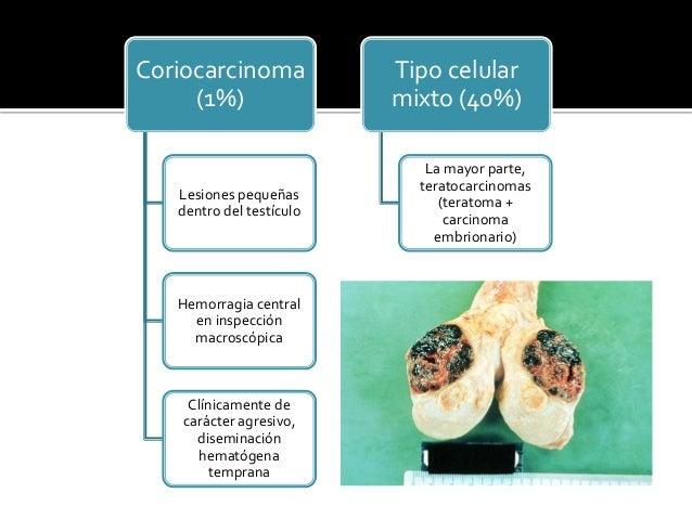 Tumores del testículo