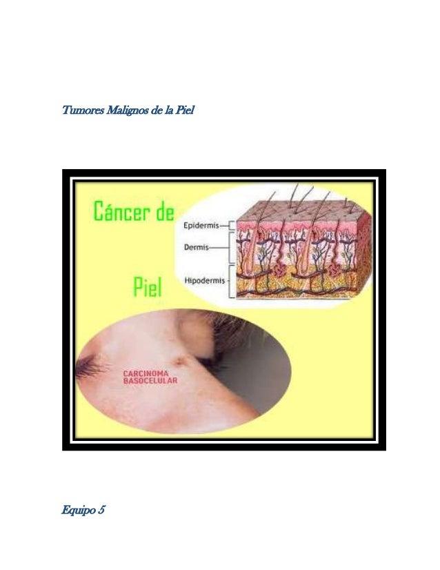 Tumores Malignos de la Piel  Equipo 5