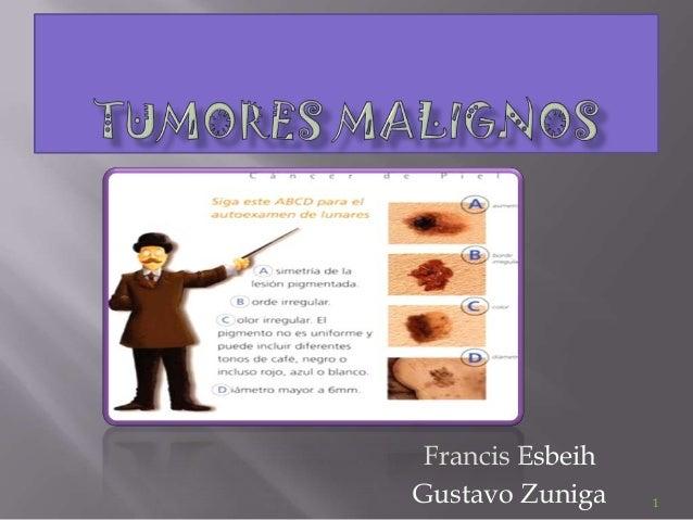 Tumores malignos total