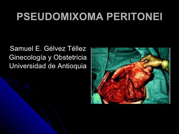 Tumores mucinosos del ovario, pseudomixoma peritonei