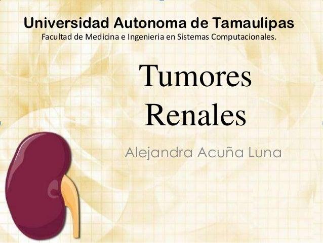 TumoresRenalesAlejandra Acuña LunaUniversidad Autonoma de TamaulipasFacultad de Medicina e Ingenieria en Sistemas Computac...