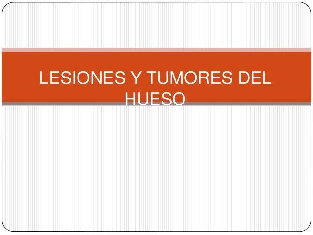 LESIONES Y TUMORES DEL HUESO