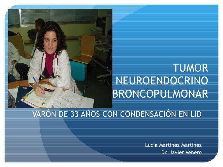 TUMOR NEUROENDOCRINO BRONCOPULMONAR VARÓN DE 33 AÑOS CON CONDENSACIÓN EN LID Lucía Martínez Martínez Dr. Javier Venero t