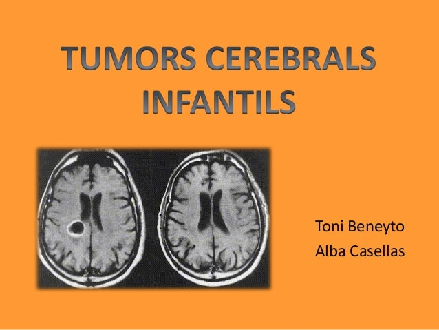Tumors cerebrals infantils