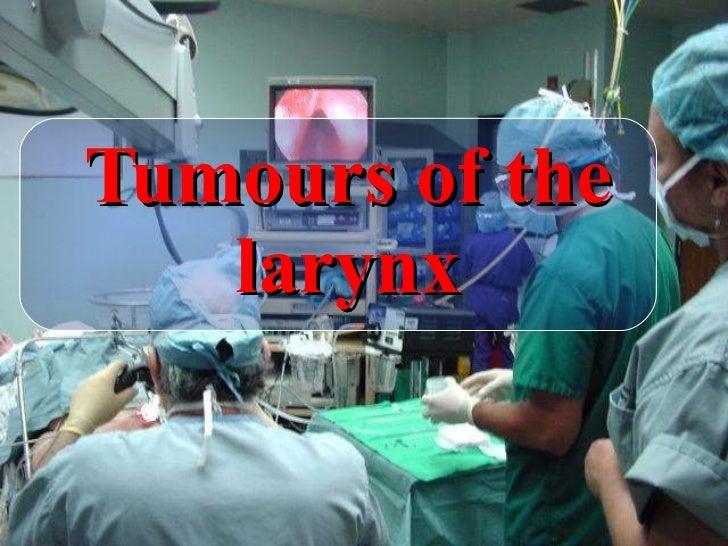E.N.T,Tumors of larynx.(dr.usif chalabe)