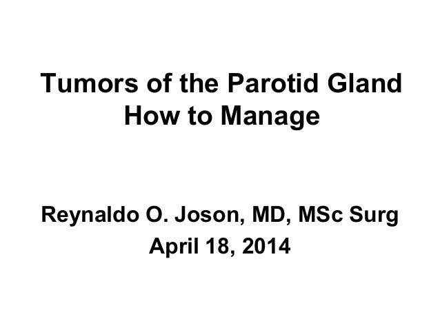 Tumors of the Parotid Gland How to Manage Reynaldo O. Joson, MD, MSc Surg April 18, 2014