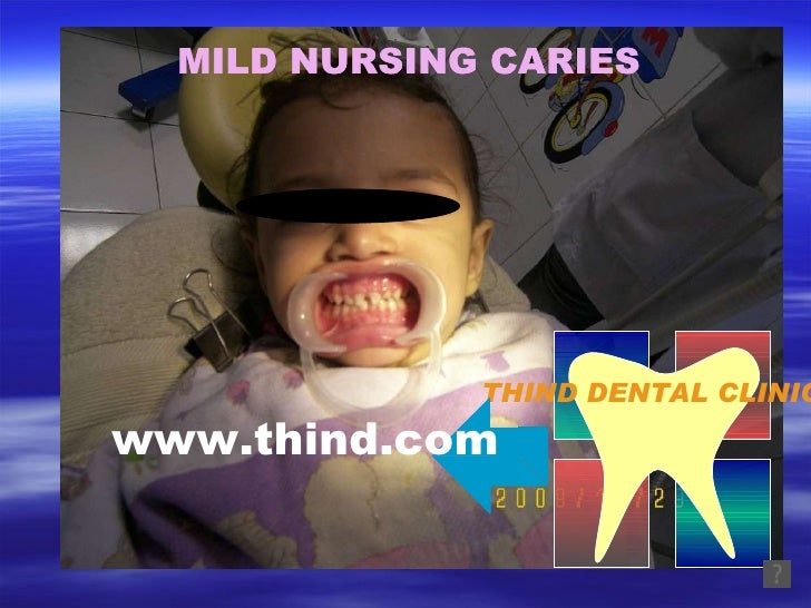 THIND DENTAL CLINIC MILD NURSING CARIES MILD NURSING CARIES www.thind.com