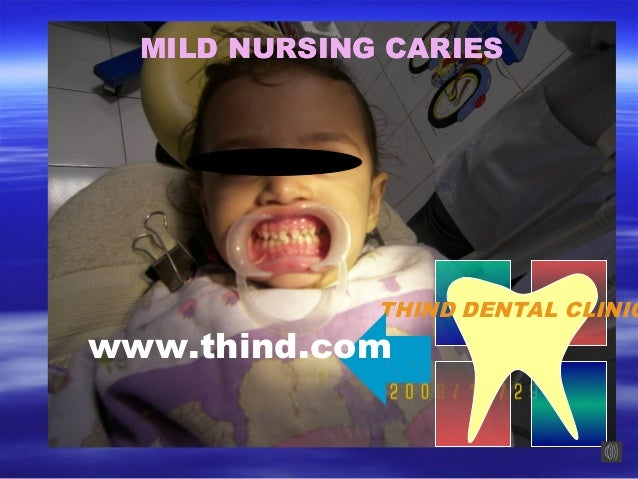 Mild nursing caries
