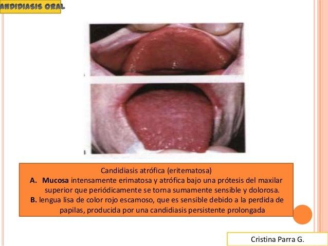premarin tablets side effects