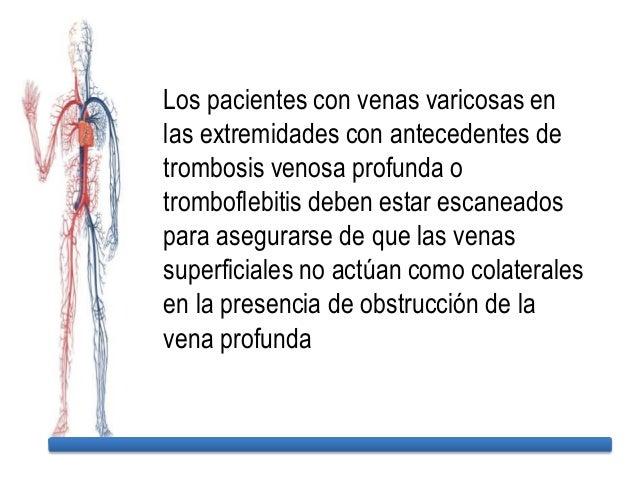La enfermedad de las extremidades inferiores de los pies de los pie