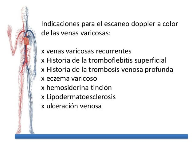 Flebektomiya 3 categorías de la complicación