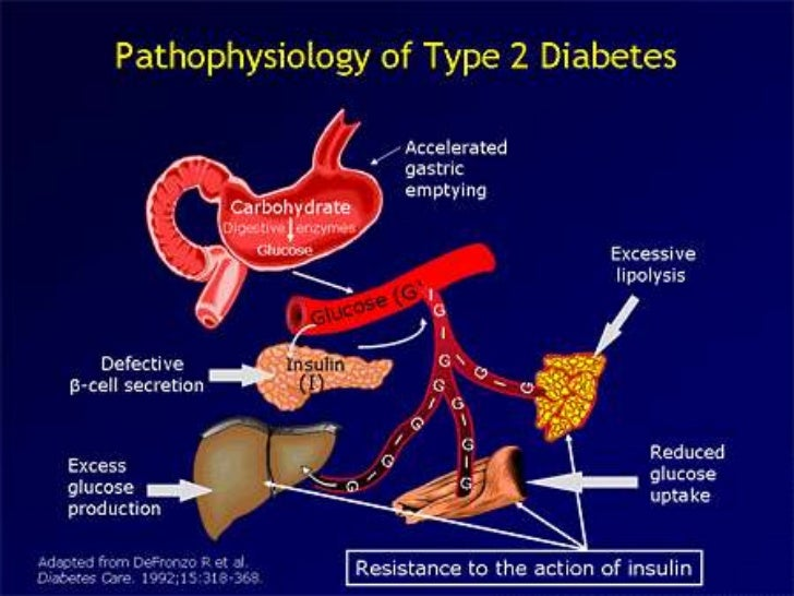 an overview of the causes symptoms and government programs on diabetes mellitus Symptoms ★ type 2 diabetes prevention programs australia ★ myasthenia gravis type 2 diabetes [[type 2 diabetes prevention programs australia]], treatment for diabetes aims to hold your blood glucose levels as typical as practicable and domesticate your symptoms to deter health problems young latter in life.