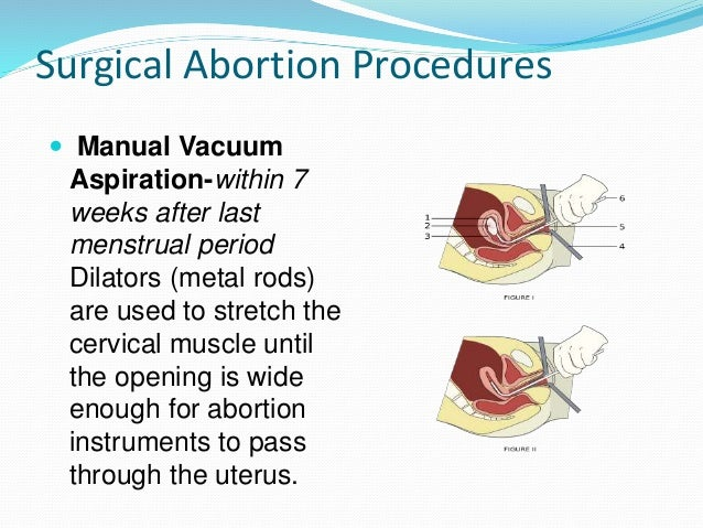 abortion process Abortion procedures there are two basic ways abortions are performed: one is called medical or medication abortion, meaning that you take medicine to end the pregnancy.