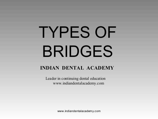 Types of bridges/fixed orthodontics courses