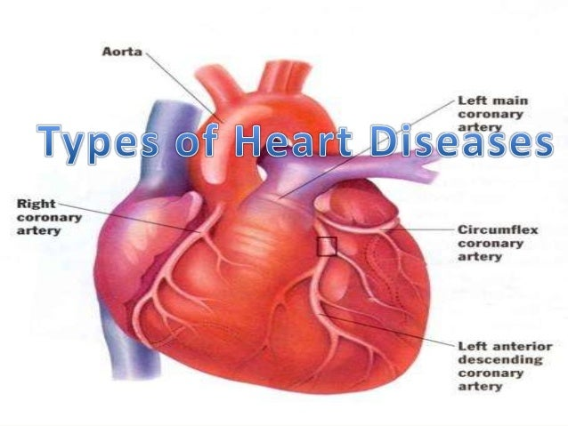 heart diseases Is there a connection between coughing and heart diseases scroll down to find out if chronic cough could be a sign of a heart ailment.