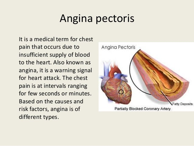 an introduction to the analysis of angina pectoris The american heart association explains chest pain, unstable angina, the risks and treatment of unstable angina what is angina angina pectoris | stable angina.