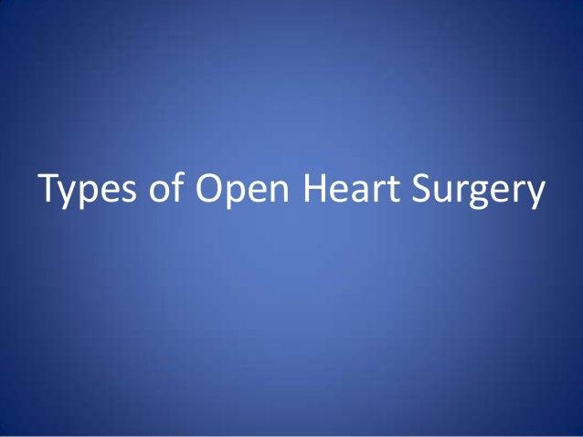 Types of Open Heart Surgery