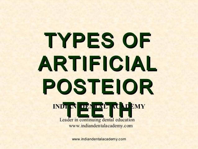Types of posterior teeth /fixed orthodontics courses