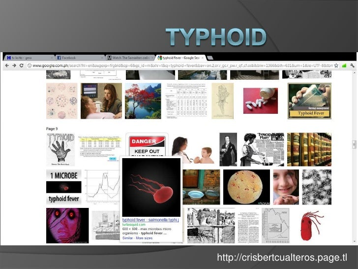 Typhoid Fever: Clinical Manifestations, Diagnosis, Treatment & Prevention