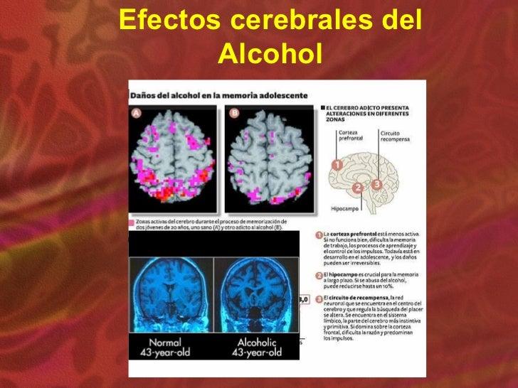 El alcoholismo en la sangre los tests