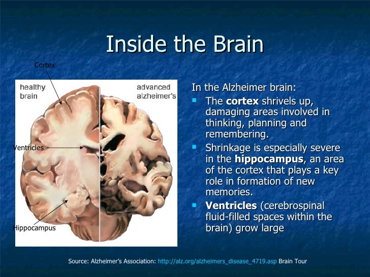 a discussion of alzheimers disease Alzheimer's disease (ad) is the most common form of dementia among older people dementia is a brain disorder that seriously affects a person's ability to carry out daily activities dementia is a brain disorder that seriously affects a person's ability to carry out daily activities.