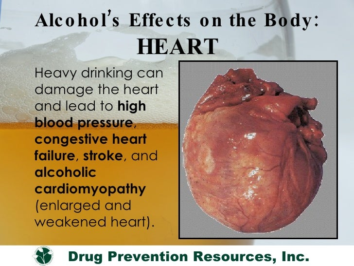 Drinking Beer And Congestive Heart Failure