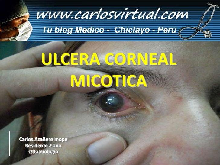 Carlos Azañero Inope Residente 2 año Oftalmología ULCERA CORNEAL MICOTICA